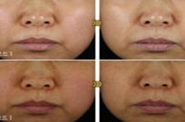 토종 유산균, 아토피 피부염 완화 효과