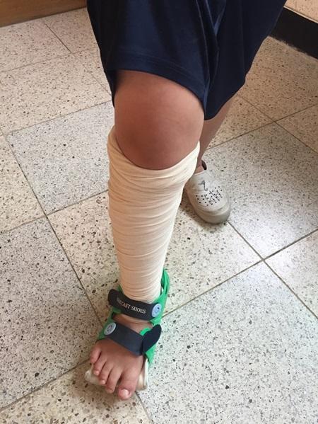 음주자전거와 충돌하여 다리를 다친 아이.