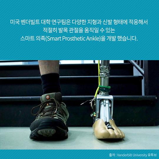 당신의 팔다리가 되어 줄 생체의수, 스마트 의족