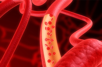 말초동맥질환에 대해 들어보셨나요?
