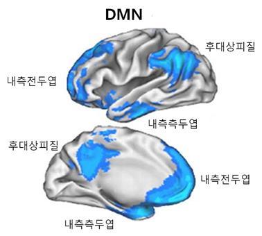 뇌의 DMN 부분.