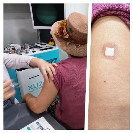 코로나19 예방접종을 받는 모습.