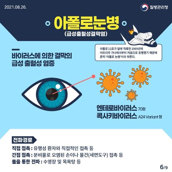 아폴로 눈병(급성출혈성결막염)